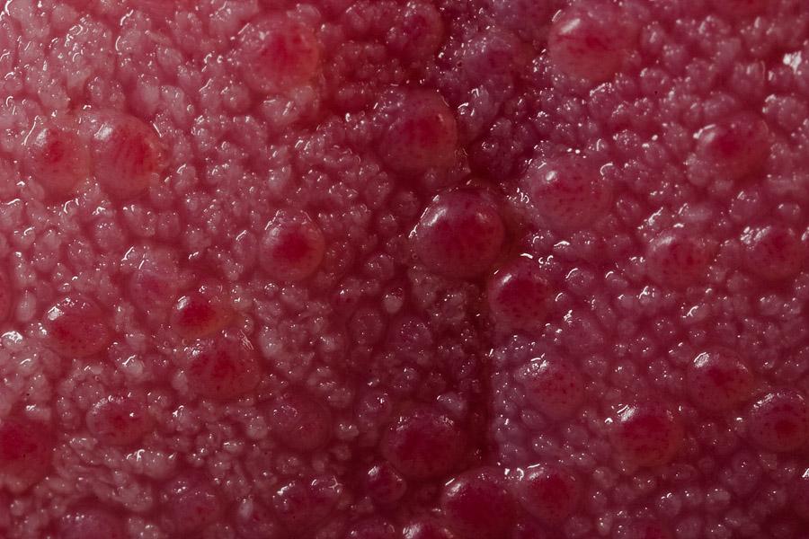HPV: prevenção e sintomas do papilomavírus humano