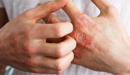 dermatite atópica na mao